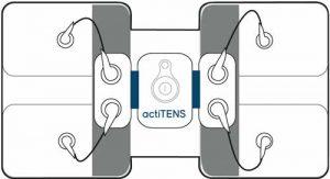 actiTENS : branchement de l'électrode lombaire vertical
