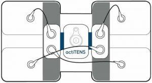 actiTENS : branchement de l'électrode lombaire horizontal