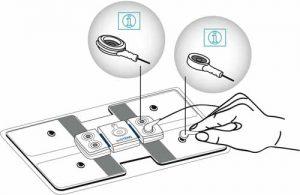 actiTENS : branchement de l'électrode lombaire