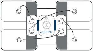Branchement électrode lombaire actiTENS