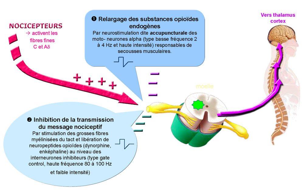Schéma du mécanisme de la douleur